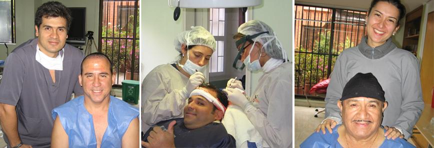 Trasplante Capilar contra la alopecia