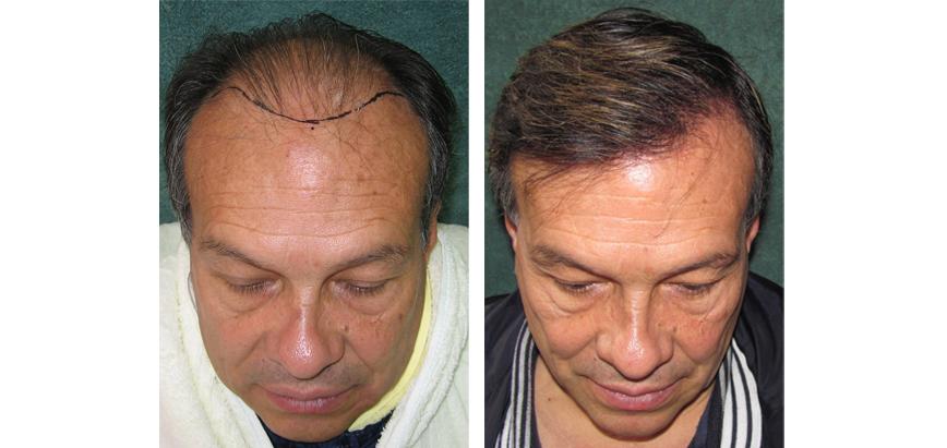 Hairdoctors Restauración folicular