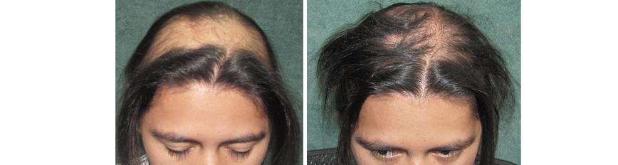 Hairdoctors Trasplante