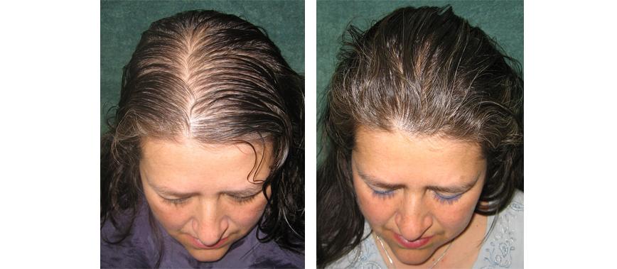 Hairdoctors Sede