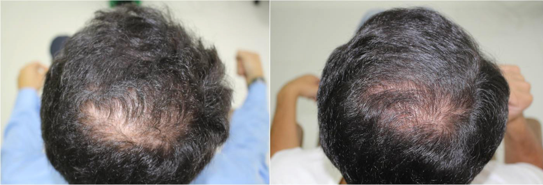 Tratamiento de Plasma Rico en Plaquetas (PRP) - Antes y después