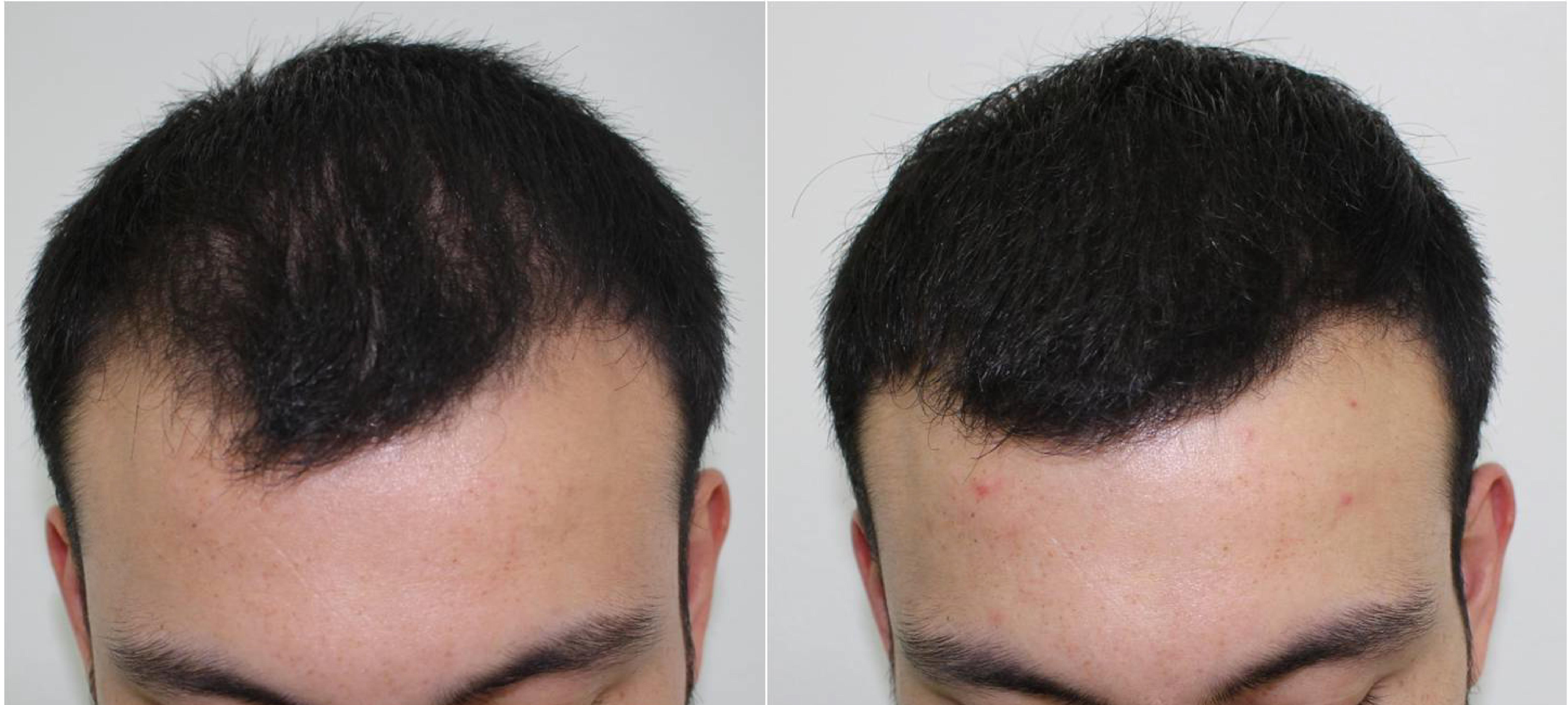 Tratamiento de Plasma Rico en Plaquetas (PRP) Antes y después b6ac7821e20b