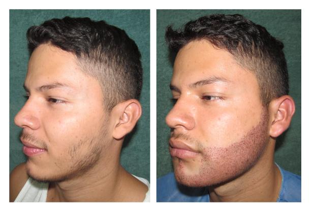 El cumplido la máscara para los cabellos laminirovanie