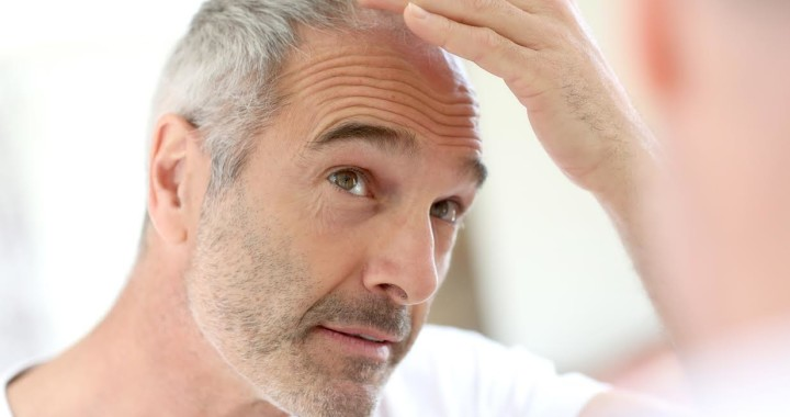 Razones para la caída del pelo