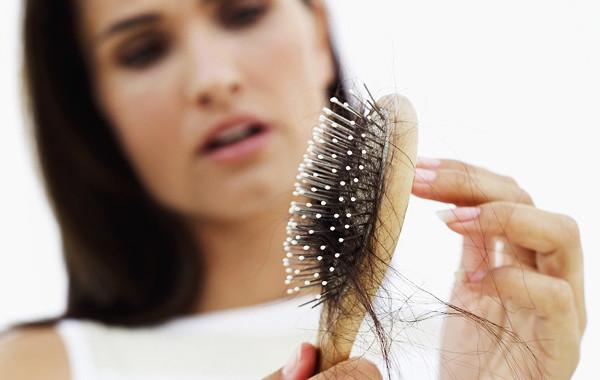 La alopecia en las mujeres