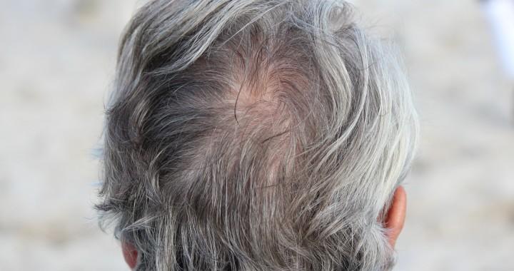 Instrucciones para las personas que empiezan a tener caída de cabello.