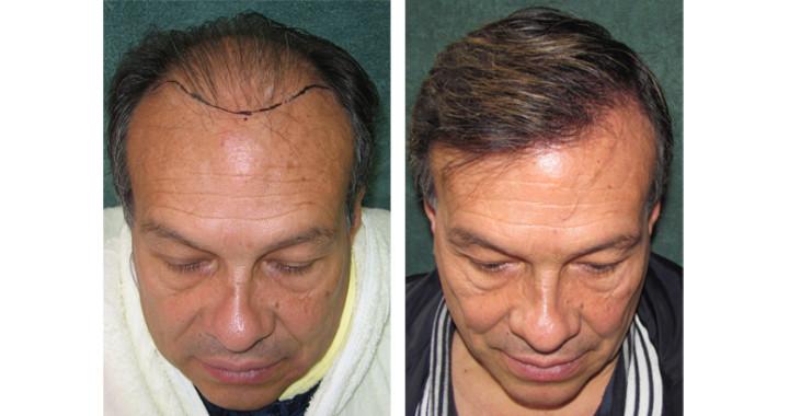 Resultado método tira contra alopecia Hair Doctors