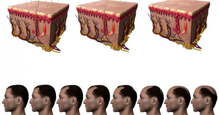 Vía- Implantpel.com.mx