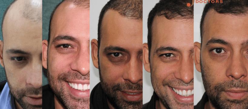 Progreso Trasplante Capilar Dr Sergio Camacho