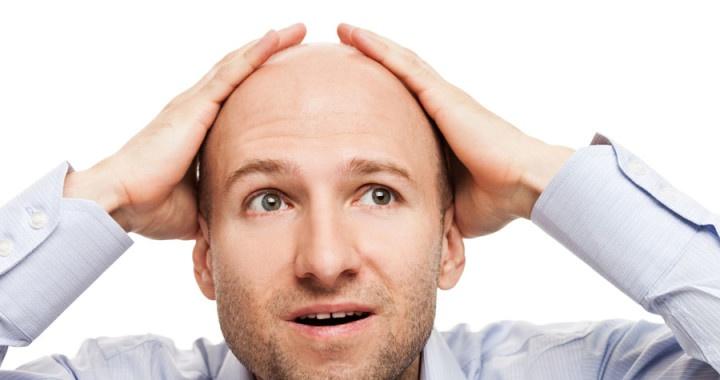pérdida de cabello, caida del pelo, calvicie, alopecia, tratamientos anticaida, trasplante capilar, implante capilar