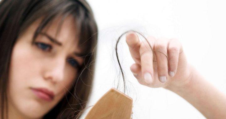 Perdida de cabello genetica