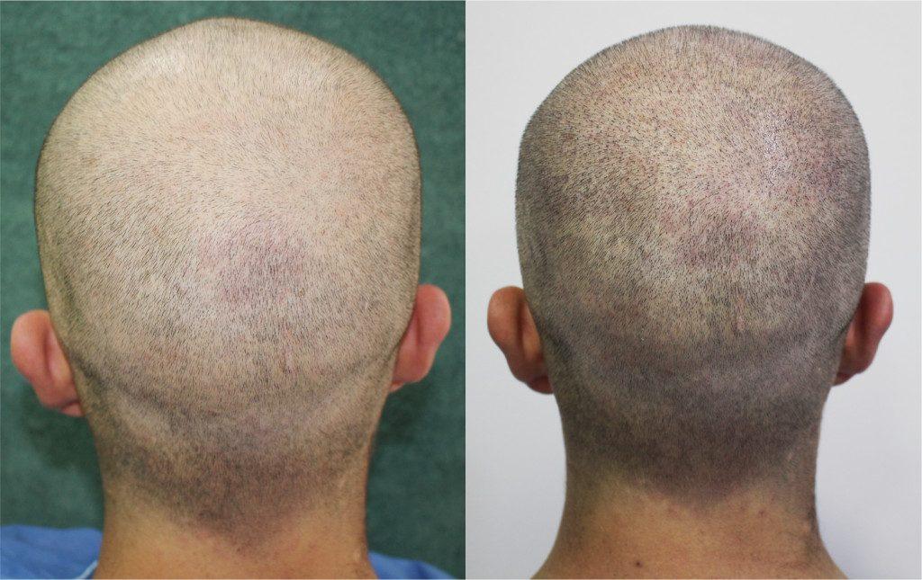 solución económica para la calvicie, solución calvicie, curar la calvicie, detener la pérdida de cabello