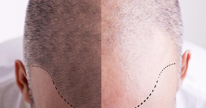 pelo, trasplante capilar